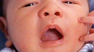 Soigner l'asthme