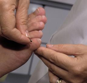 Quels sont les bienfaits de l'acupuncture pendant la   grossesse ?