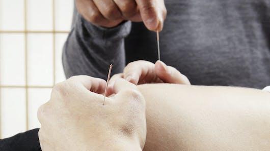 L'acupuncture pendant la grossesse