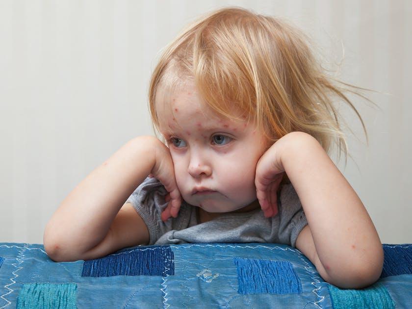 varicelle reconna tre la maladie chez l 39 enfant. Black Bedroom Furniture Sets. Home Design Ideas