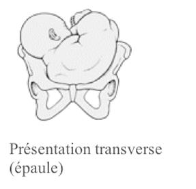 La présentation transverse ou de l'épaule