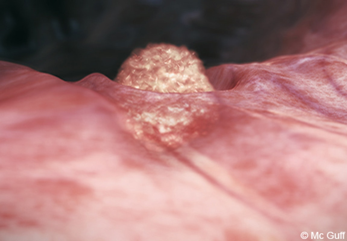 Le foetus en images volution du foetus dans le ventre de - Fausse couche 2 semaines de grossesse ...
