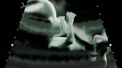 Le fœtus bâille dans le ventre de sa mère