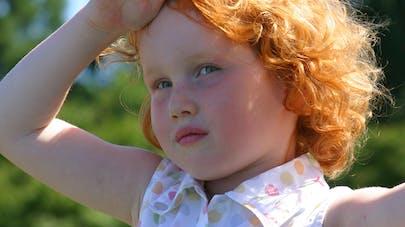 Un test génétique pour détecter la rousseur