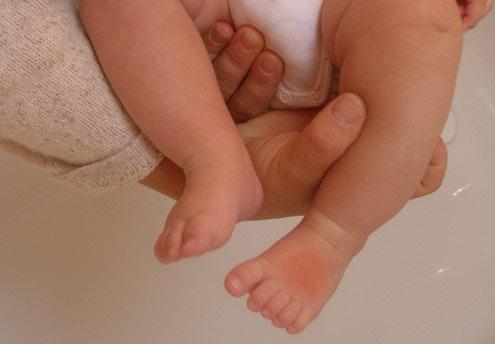 Bébé s'est brûlé : les bons gestes pour l'apaiser