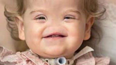 Une fillette née sans nez bientôt opérée