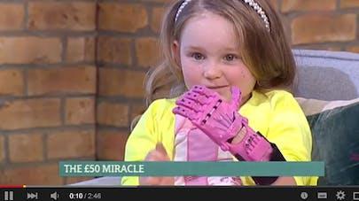 Royaume-Uni : une petite fille a un nouveau bras grâce à   une impression 3D