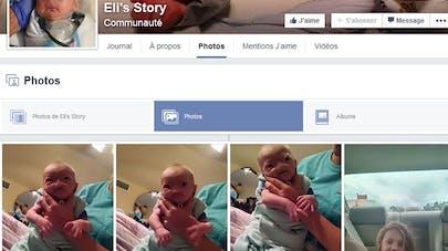 Etats-Unis : un bébé naît sans nez