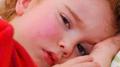 France : attention au grand retour de la varicelle