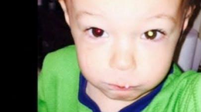 Etats-Unis : un enfant de 2 ans sauvé du cancer grâce à   une photo