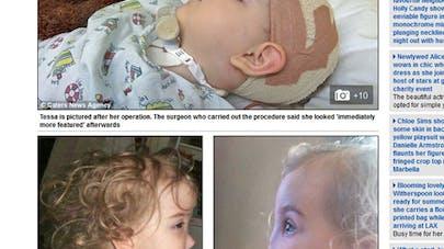 Tessa Evans, la petite fille née sans nez, vient de subir  une opération chirurgicale