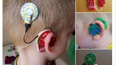 Angleterre : une maman personnalise les appareils auditifs   de son fils pour les rendre plus cool