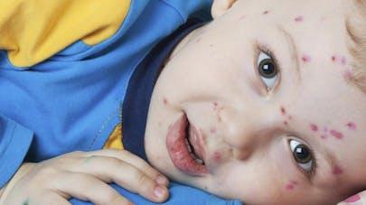 Lyon: forte activité de la varicelle en ce début de   vacances scolaires