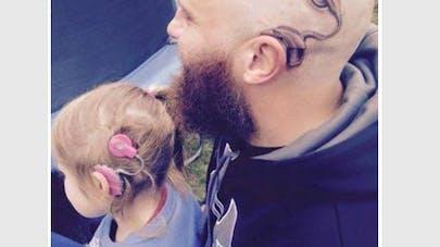 Un père se fait tatouer un implant auditif pour sa fille   sourde