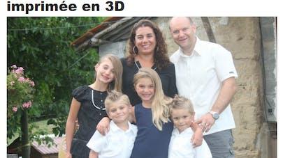 Un petit Français de 6 ans reçoit une prothèse de main   imprimée en 3D