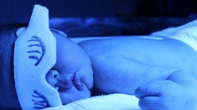 Nouveau-né : la lumière bleue contre la jaunisse   augmenterait le risque de cancer pédiatrique
