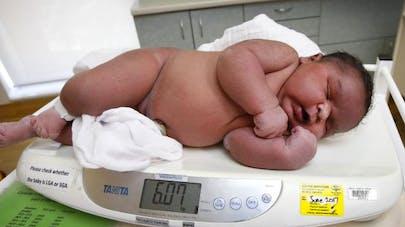 Étonnant : naissance d'un bébé de 6 kg ! (PHOTO)