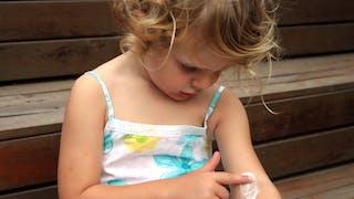 petite fille se met une crème contre eczéma