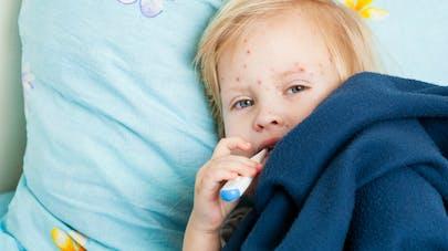 Varicelle: le virus progresse dans plusieurs régions