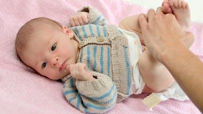 Hernie ombilicale: pourquoi touche-t-elle surtout les prématurés?