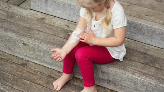 Comment protéger les enfants des piqûres de moustiques ?
