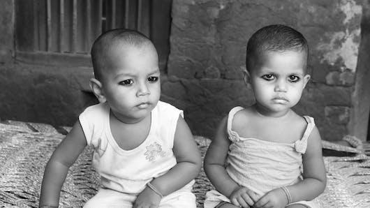 Des siamois reliés par la tête, opérés avec succès en Inde
