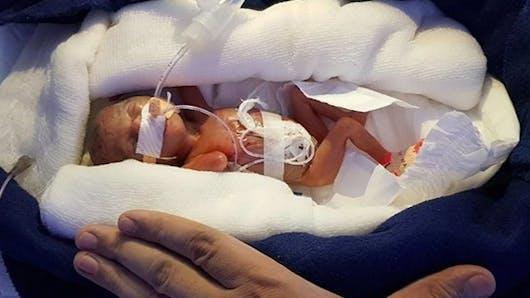 Inde : la miraculeuse naissance d'une petite fille de 400 grammes