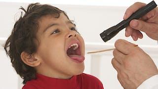 Les amygdales chez l'enfant