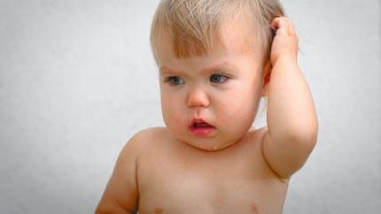 Migraines : les bébés aussi
