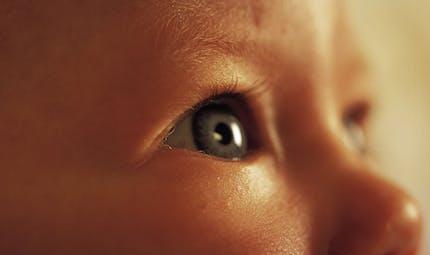 Le strabisme chez bébé