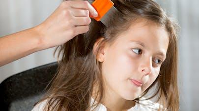 9966e10da4 Poux : conseils et recommandations | PARENTS.fr