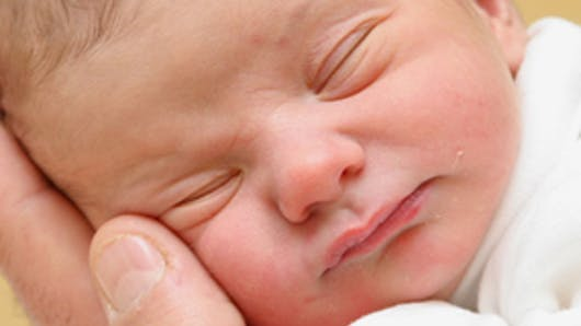Bébé a une fente labio-palatine