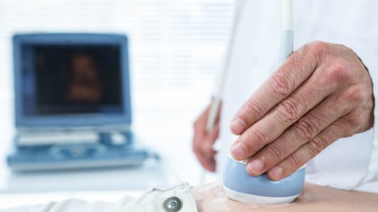 La réduction embryonnaire, qu'est-ce que c'est ?