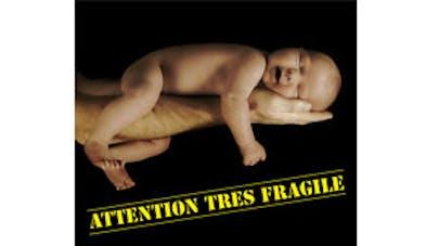 affiche bébé secoué, image