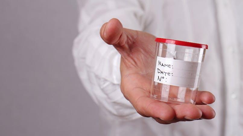 Infertilité masculine : le spermogramme à la loupe