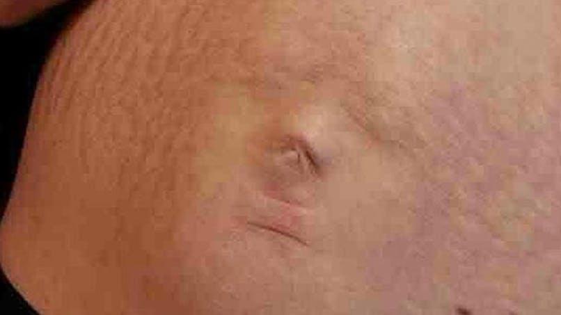 Le visage du fœtus apparaît à travers le ventre de sa   mère