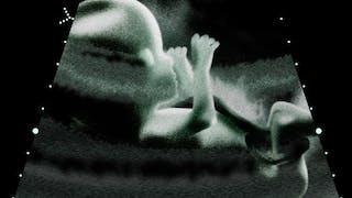 Chirurgie fœtale : focus sur les interventions