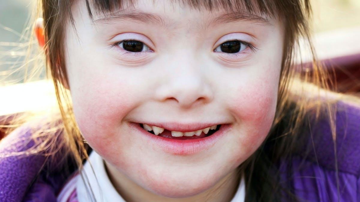 Enfant handicapé - image