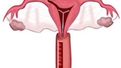 Contraception : une application Facebook sur le  stérilet