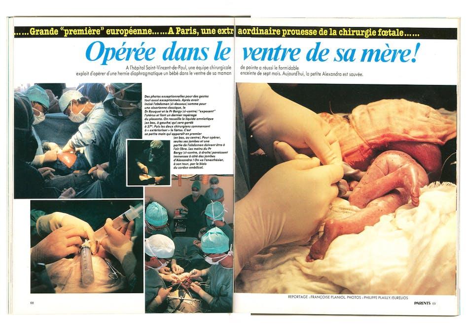 1993 : le premier bébé opéré in utero en Europe