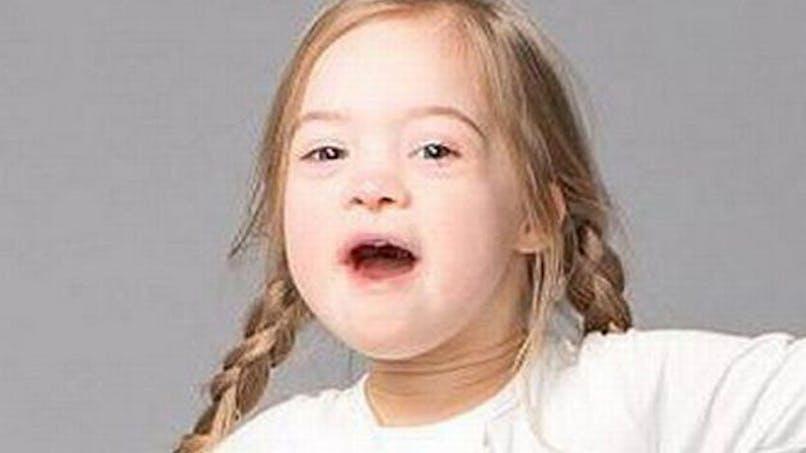 Trisomie 21 : Cora, une petite égérie pour une grande   cause !
