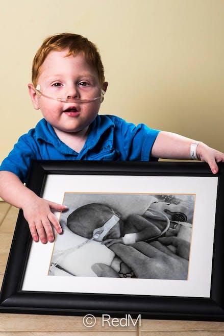 Charles, né à 26 semaines.