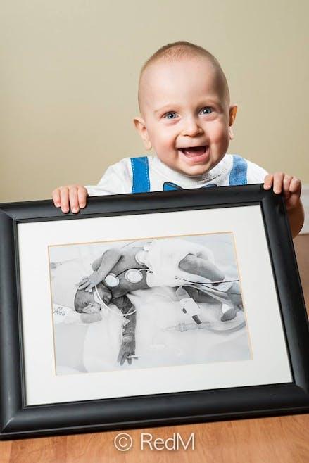 Émile, né à 26 semaines.
