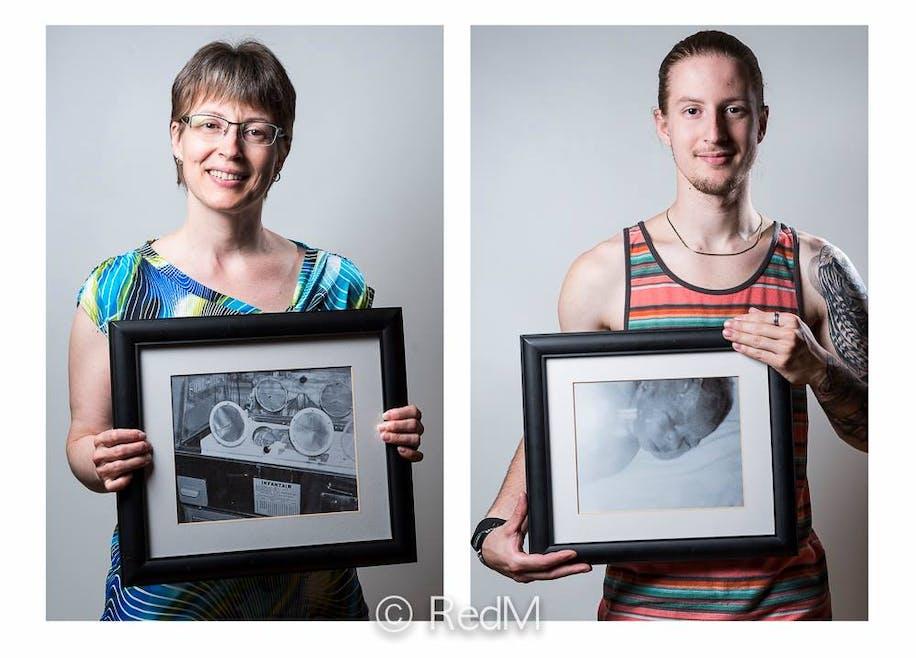Julie, née à 7 mois de grossesse, et son fils Kevin,         né à 34 semaines.