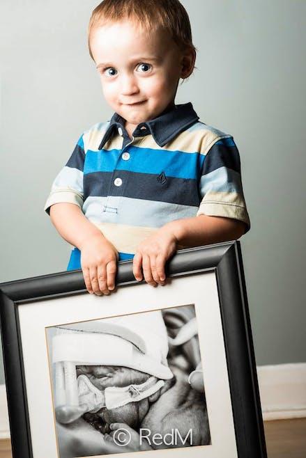Zachary, né à 27 semaines.