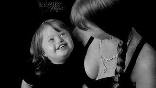 Handicap : de sublimes photos de mamans avec leurs   enfants