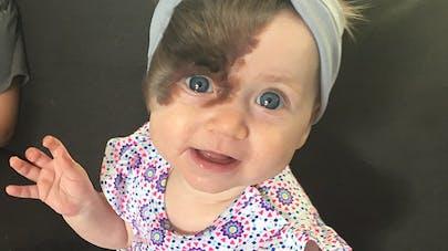 A 7 mois, ce bébé va être opéré 7 fois pour retirer sa   tache de naissance faite de poils