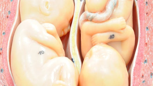 Faux jumeaux ou jumeaux dizygotes: presque des frères et sœurs comme les autres