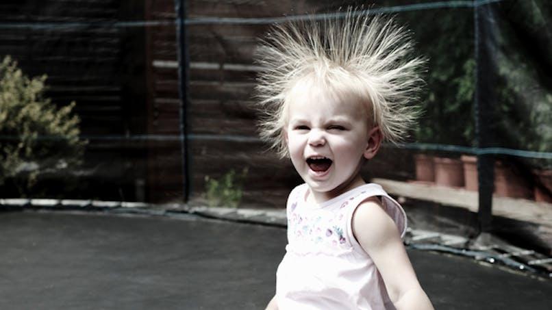 Des chercheurs identifient l'origine du syndrome des   cheveux incoiffables