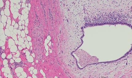 La localisation de l'endométriose